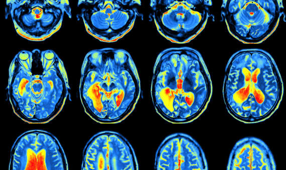 4 Things About a Brain Injury Lawsuit